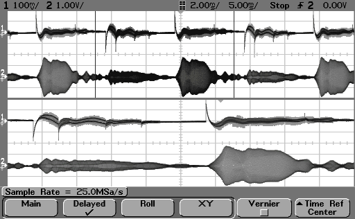 Oscilloscope traces from the Multifrequency Multimode Modulated Sonic  Ultrasonic system